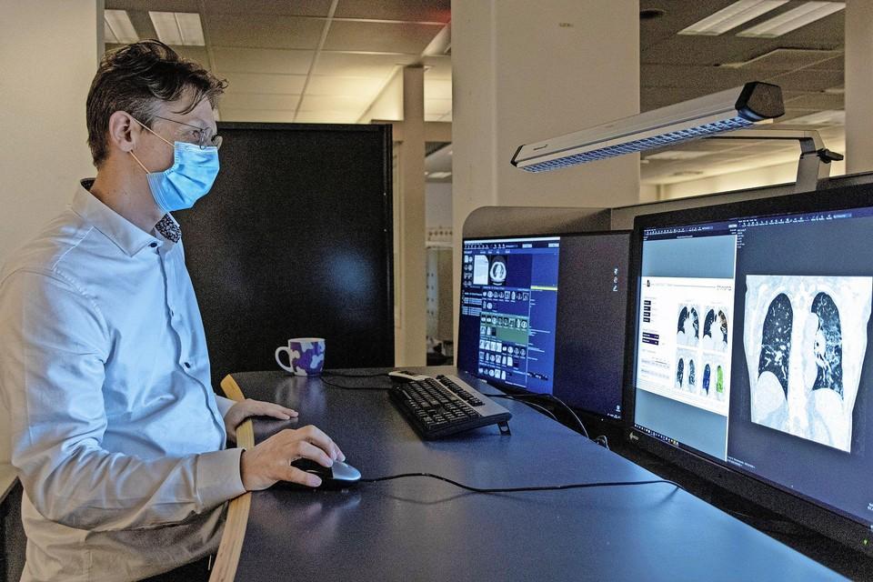 Radioloog Hildo Lamb bekijkt op de computer een aantal scans.