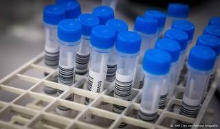 RIVM: 4520 nieuwe coronagevallen, stuk lager dan weekgemiddelde